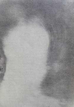 Fotograf&iacute;a trascendental, ps&iacute;quica o Supranormal de fluidos obtenida en la Sociedad Constancia, Buenos Aires, 10 de Noviembre de 1926. Experimentadores: Sras. De Corneille, Villa y Blandin; Sres. J. Villa y M. Rinaldini. [Fuente: <I>Diccionario de Espiritismo-Metapsiquismo</I>. Depascale y Rinaldini, 1927. (fotograf&iacute;a-prueba indirecta)].