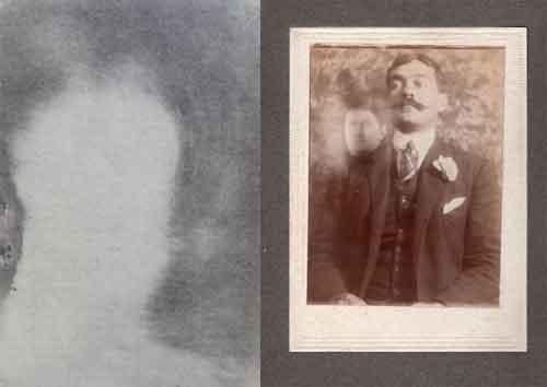 """Las """"magnetografías"""" eran placas obtenidas luego de mantener por un tiempo determinado las manos a unos centímetros de las planchas fotográficas en su baño revelador y servían para demostrar los efectos de los efluvios magnéticos. Las """"fotografías trascendentales"""" eran fotografías logradas durante sesiones de las manifestaciones de los médiums."""